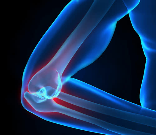 X-ray elbow pain concept